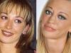 Famosas operadas de la nariz antes y después: Belén Esteban