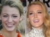 Famosas operadas de la nariz antes y después: Blake Lively