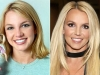 Famosas operadas de la nariz antes y después: Britney Spears