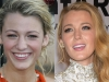 Famosas operadas de la nariz antes y después: portada