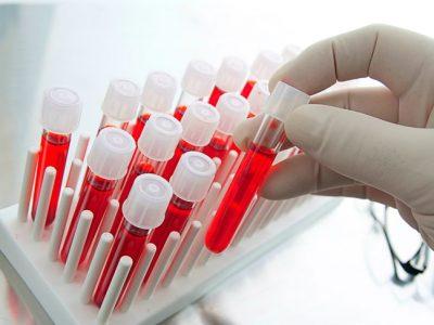 Exceso de glóbulos rojos en la sangre: Síntomas y causas