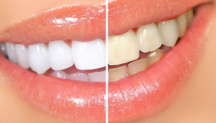 Blanqueamiento dental casero: Tratamientos efectivos