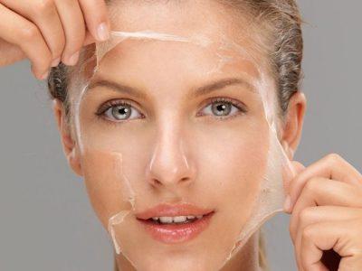 Peeling químico facial: En qué consiste