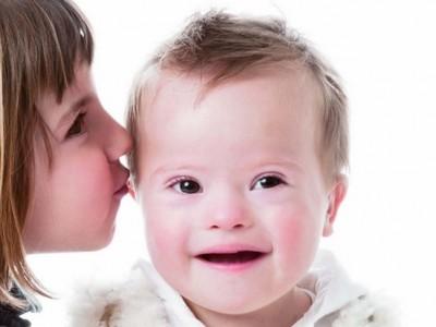 Día Mundial del Síndrome de Down 2016: Derechos, bienestar e igualdad