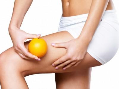 Celulitis: Malos hábitos que motivan su aparición