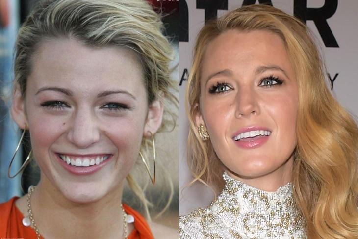 Famosas operadas de la nariz: Descubre el antes y el después