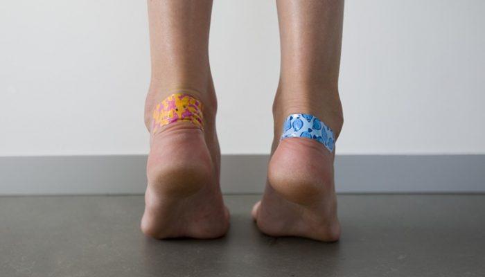 3 remedios caseros para curar las ampollas y rozaduras en los pies