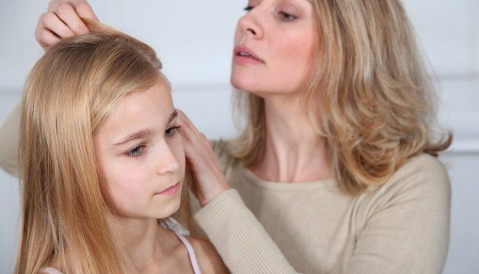Las 6 dudas más comunes de los padres cuando su hijo tiene piojos