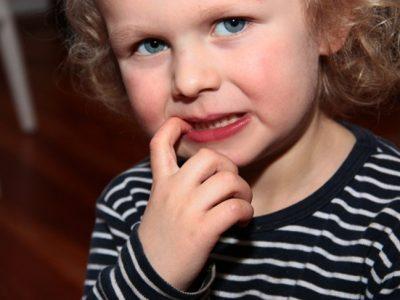 3 riesgos de que los niños se muerdan las uñas