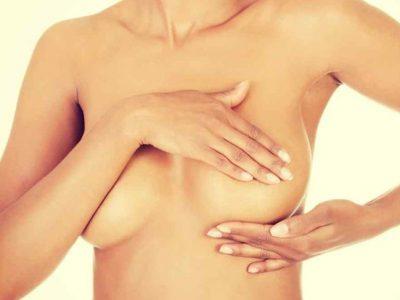 5 consejos para prevenir el cáncer de mama