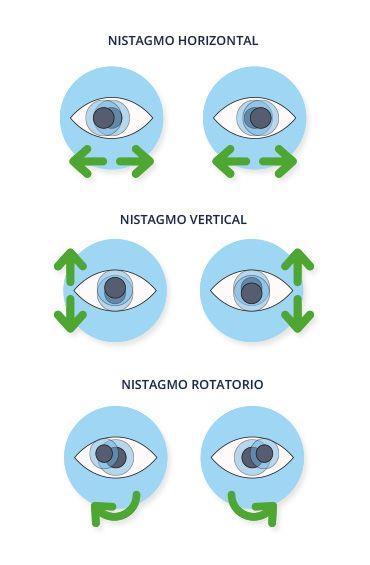 Tipos de nistagmo